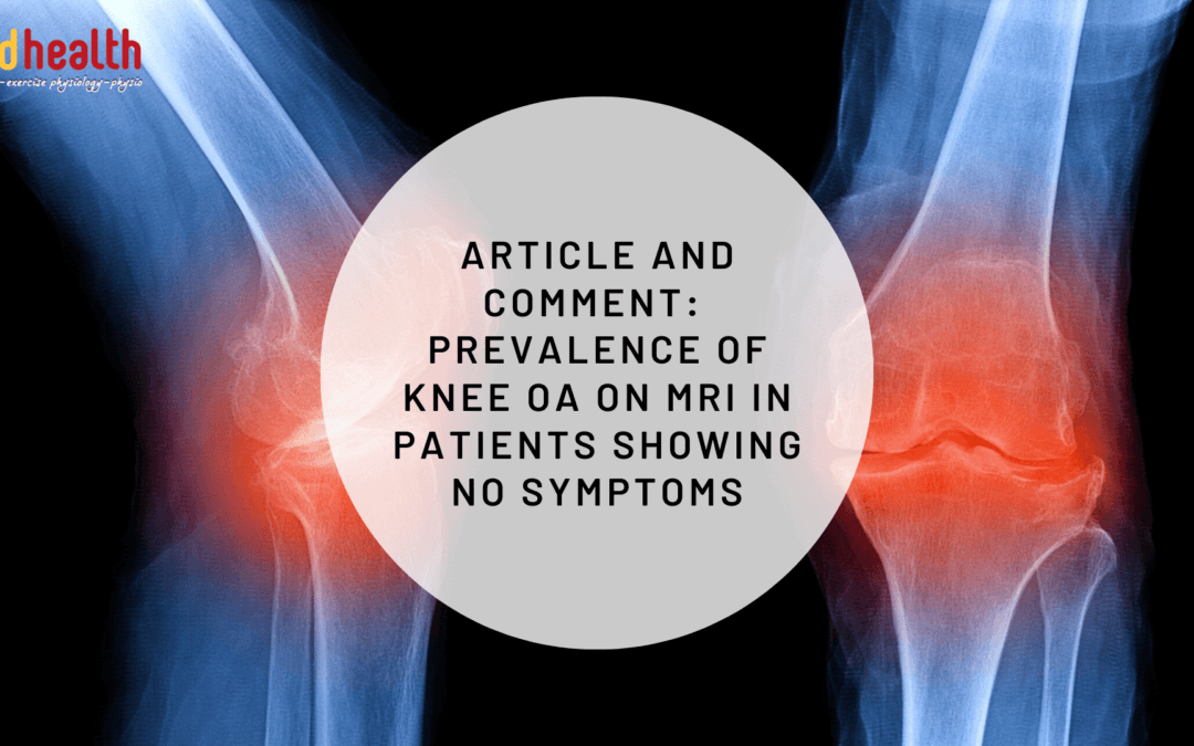 Article and Comment – Prevalence of Knee OA on MRI in patients showing no symptoms